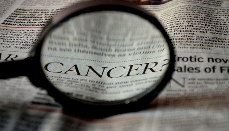 Beberapa Hal yang Perlu Diketahui Mengenai Kanker