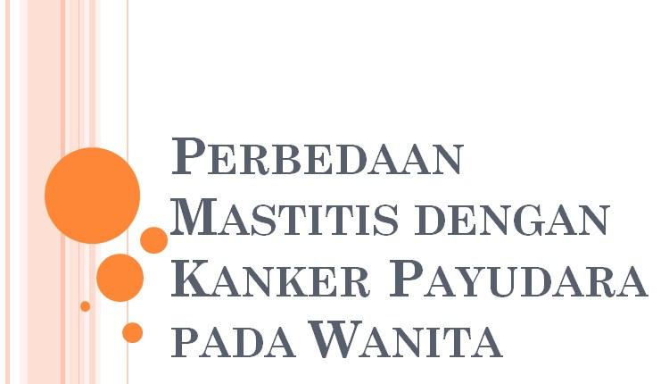 Perbedaan Mastitis dengan Kanker Payudara pada Wanita